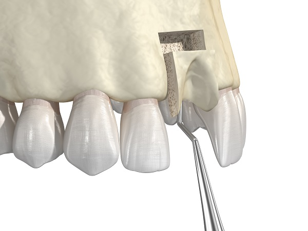 Dental Implant FAQ: What Is A Bone Graft?